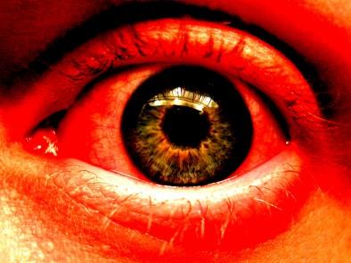 Синдром на сухото око – причини и лечение