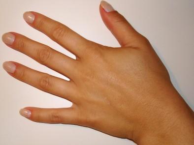 Как кожата ни  предупреждава за някой здравословен проблем