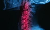 Как да разпознаем ранните симптоми на остеопорозата