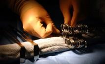 Уволниха двама лекари, оперирали здрава ръка на момиченце