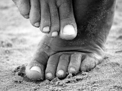 Гъбички по ноктите (онихомикоза) – симптоми и причини