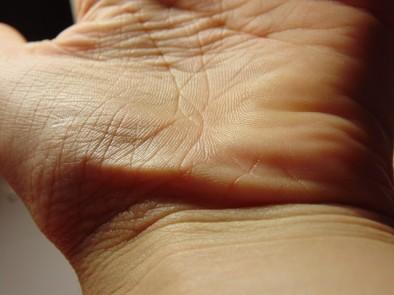 Стартира Национална кампания за скрининг и профилактика на кожния рак