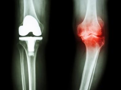 Домашен лек при различни дегенеративни заболявания свързани с болки в мускулите и ставите