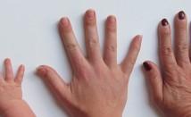 Ноктите – огледалото на нашето здраве или как външният им вид може да ни подскаже, че имаме проблеми със здравето