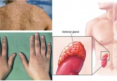 Предупредителни признаци при надбъбречна недостатъчност и природни методи на лечение