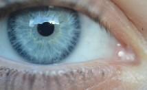 Носенето на лещи може да измени бактериалната флора на очите