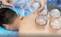 Терапия с вендузи – древен метод за по-добро здраве