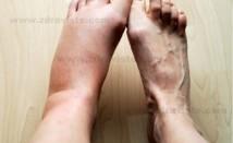 Подути и отекли крака – домашни лекове
