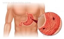 Предупредителни симптоми, подсказващи, че имате стомашна язва