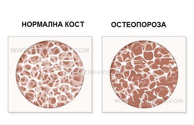 Храни, които ни предпазват от появата на остеопороза